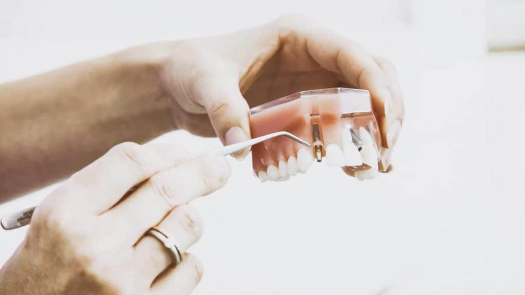 Manos sujetando una prótesis dental