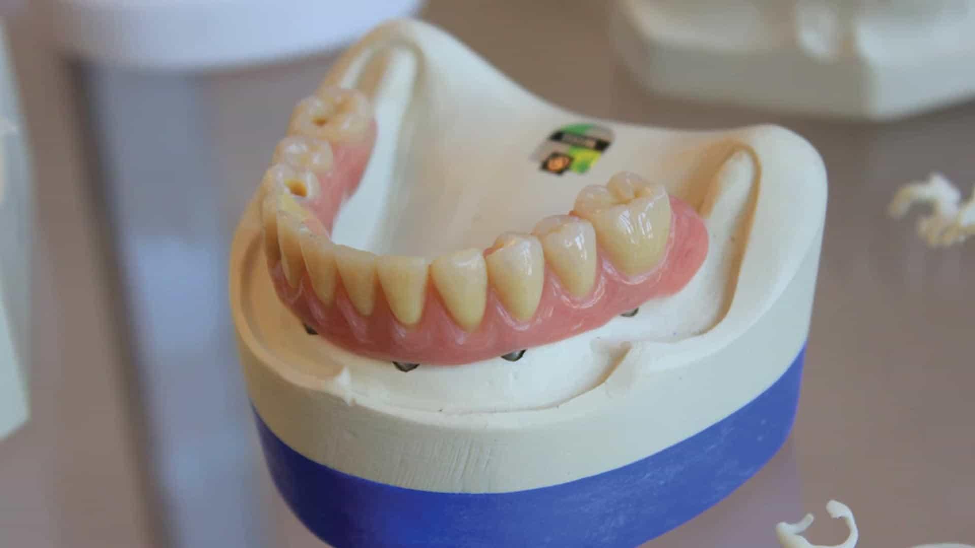 ¿De qué está formado un diente?