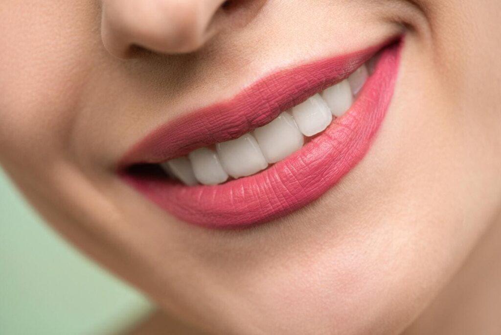 Blanqueamiento dental casero en Barcelona